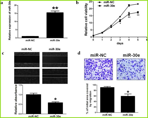 Overexpression of miR 30e inhibits the ability of cell proliferation migration and invasion in BC cells a Relative miR 30e expression levels were